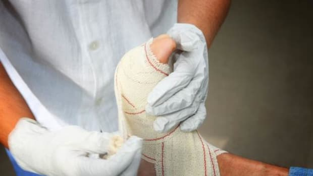 Proper wound care can prevent the risk of amputation or death.