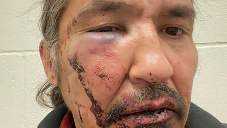 Charges against First Nation chief dropped