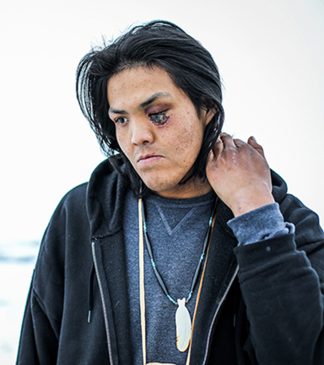 Marcus Mitchell DAPL rubber bullet wound to face